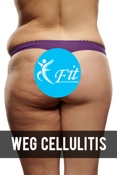 Weg cellulitis arrangement